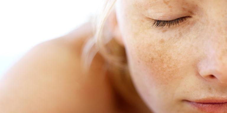 Melasma: tratando com microagulhamento